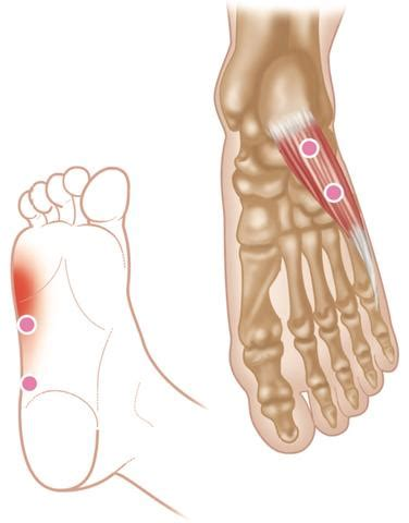 Trigger Point Therapy - Superficial Muscles of the Foot