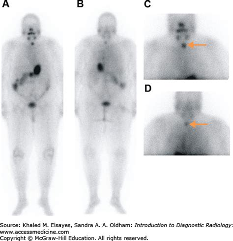 Introduction to Nuclear Medicine | Radiology Key