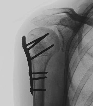 Proximal humerus fractures with valgus deformity of the