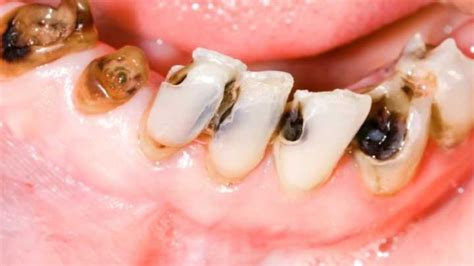 Stopping Fluoridation Meant More Tooth Decay For Calgary