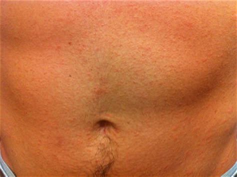 Prevention of ringworm   Skin & Hair problems articles