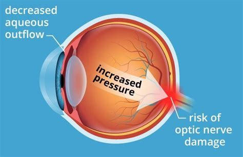 Vitamin D is the best vitamin to fight glaucoma – May 2018
